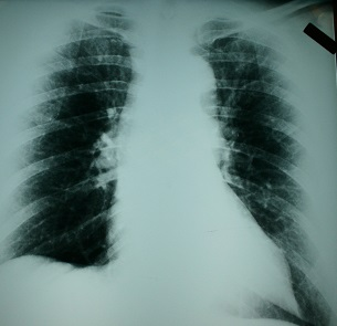 Wisconsin Mesothelioma Attorneys